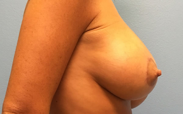 After-Breast Lift With Implants