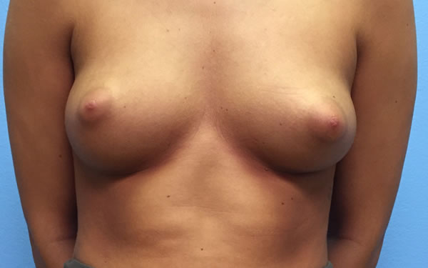 Before-Breast Augmentation Before and After Photos