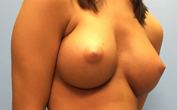 After-Breast Augmentation Before and After Photos