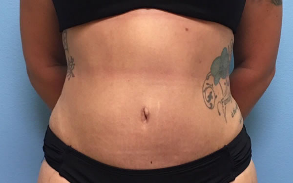 After-Tummy Tuck with Lipo 360