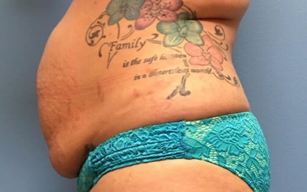 Before-Tummy Tuck with Lipo 360