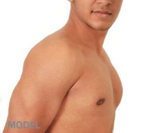 breast-reduction-male-results-2