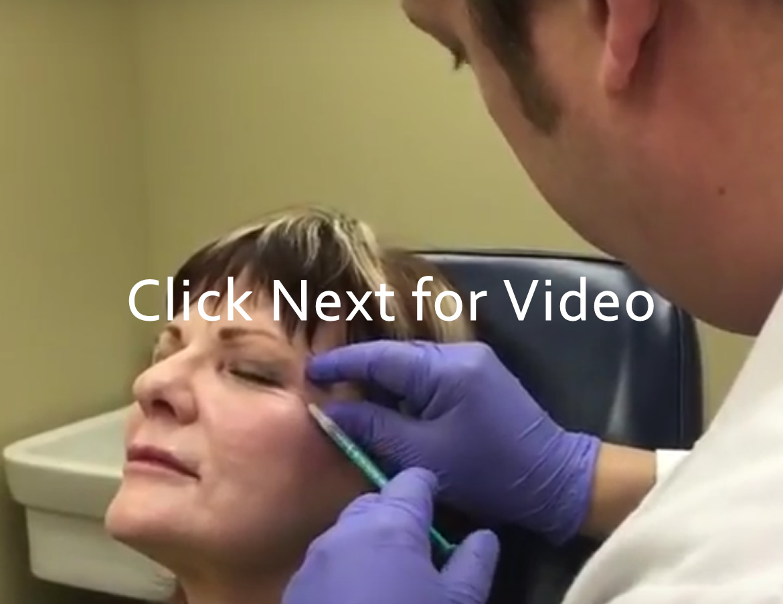 Wrinkle Treatment Dysport Filler for Crows Feet Wrinkles Near Eyes