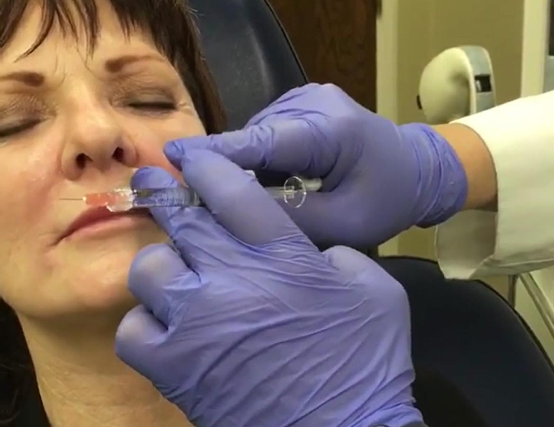wrinkle-treatment-restylane-l-nasolabial-folds