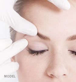 eyelid-surgery-lift-before-wedding