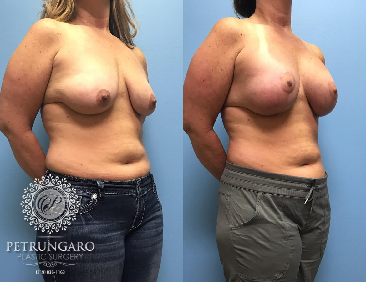 42 year old woman 3 months after breast lift with augmentation