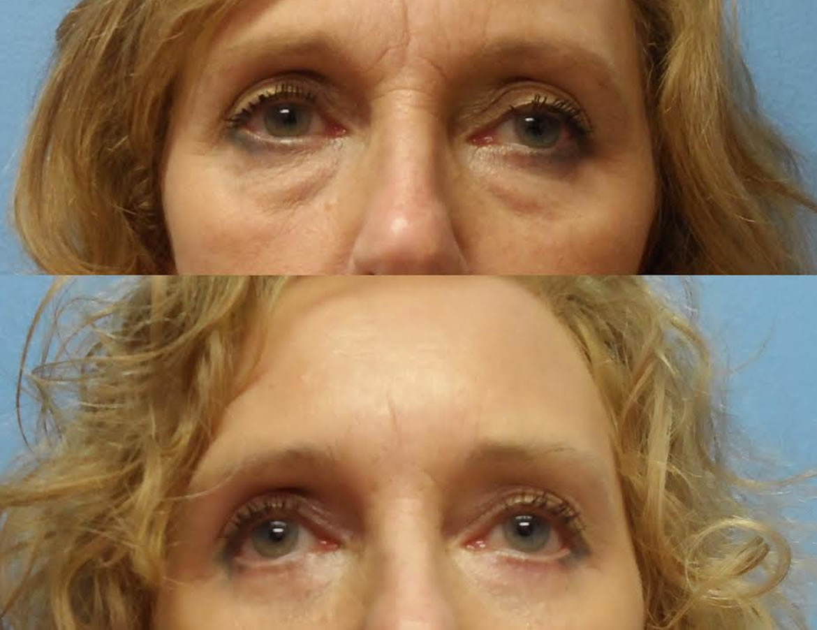 60 year old woman 3 months after lower eyelid lift