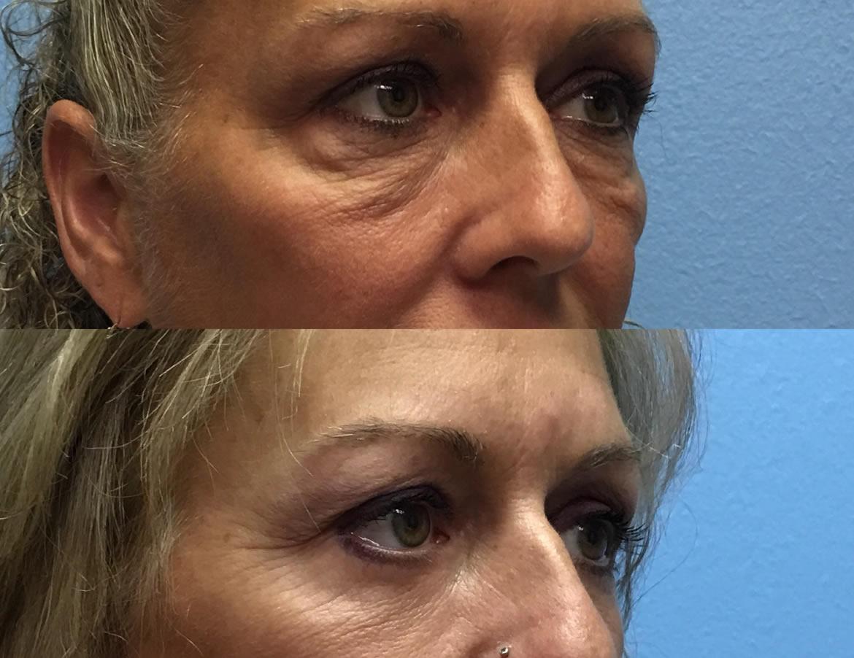 eyelid-surgery-2-1