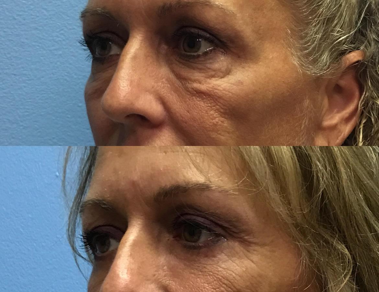 eyelid-surgery-2-2