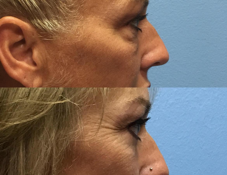 eyelid-surgery-2-3
