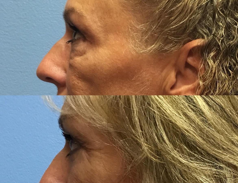 eyelid-surgery-2-4