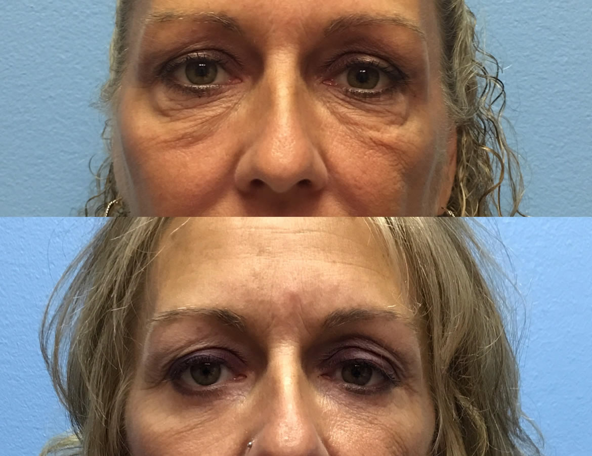 46 year old woman 4 months after lower eyelid lift