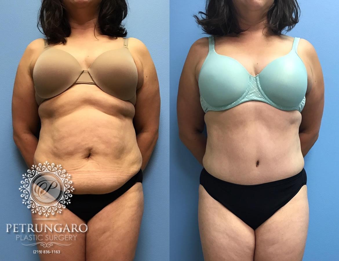 42 year old woman 3 months after Tummy Tuck with Lipo 360