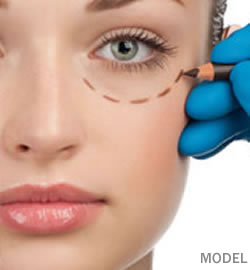 WHAT-IS-EYELID-SURGERY-CHICAGO