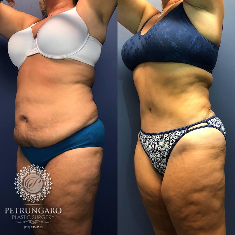 48 year old woman 3 months after Tummy Tuck with Lipo 360