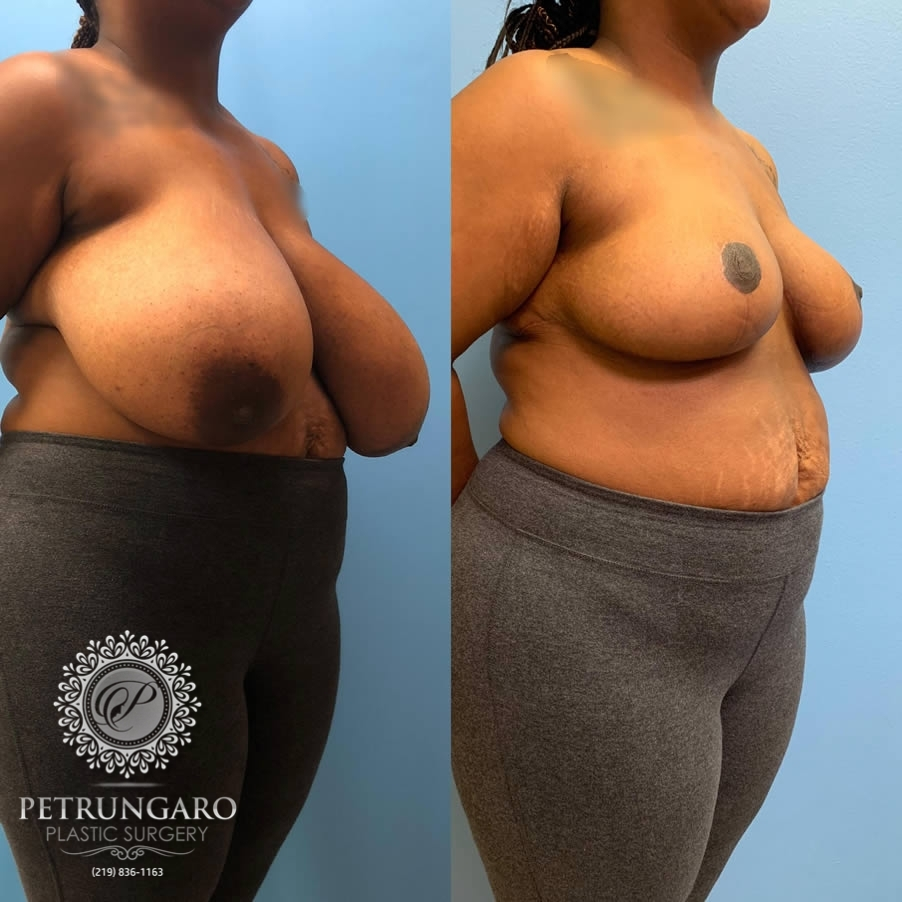 29 year old woman 3 months after breast reduction